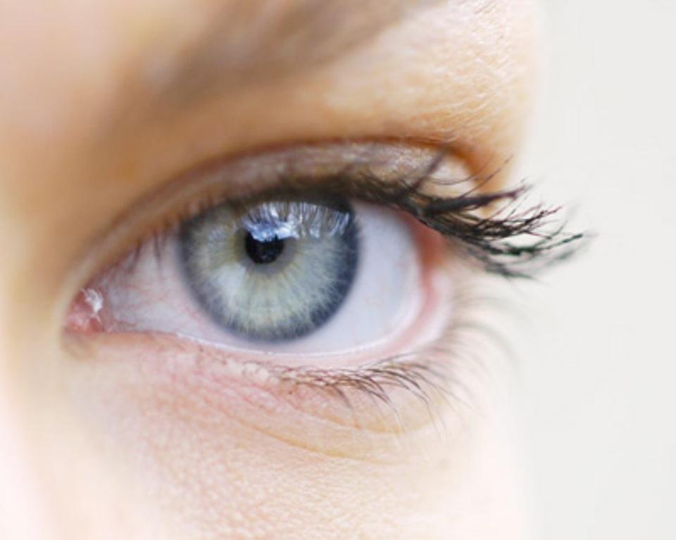 La sécheresse oculaire : qu'est ce que c'est ?