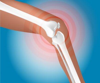 Schéma explicatif de l'arthrose du genou ou gonarthrose